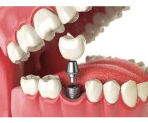 Dental implants Doncaster