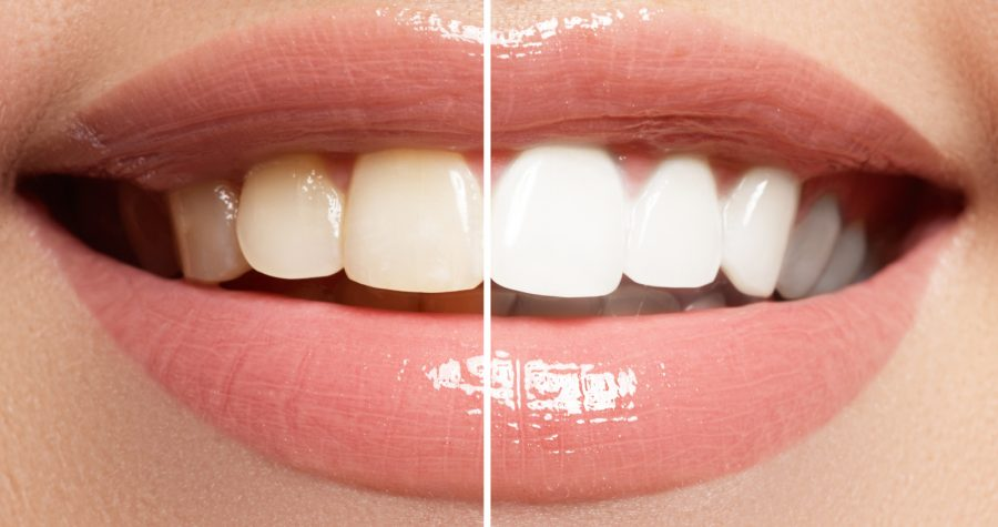 Why Tooth Whitening?